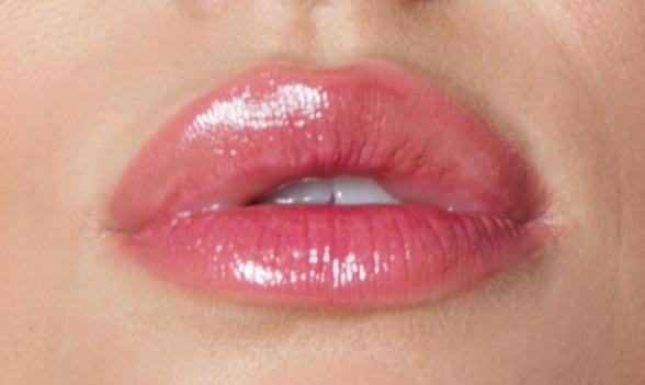 aumento-labios-mini