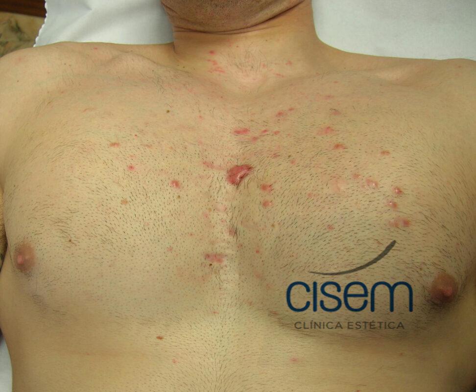 queloides en cicatrices de acné corporal