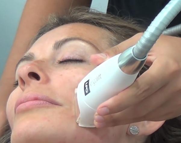 Tratamiento con LPG facial